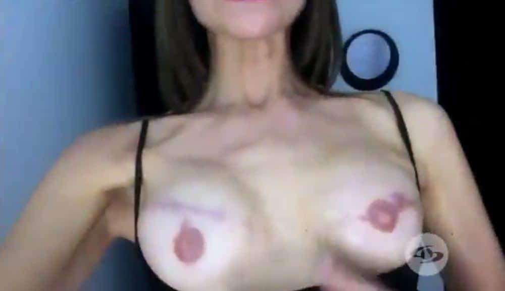 Lorena Meritano muestra su lucha contra un agresivo cáncer de mama