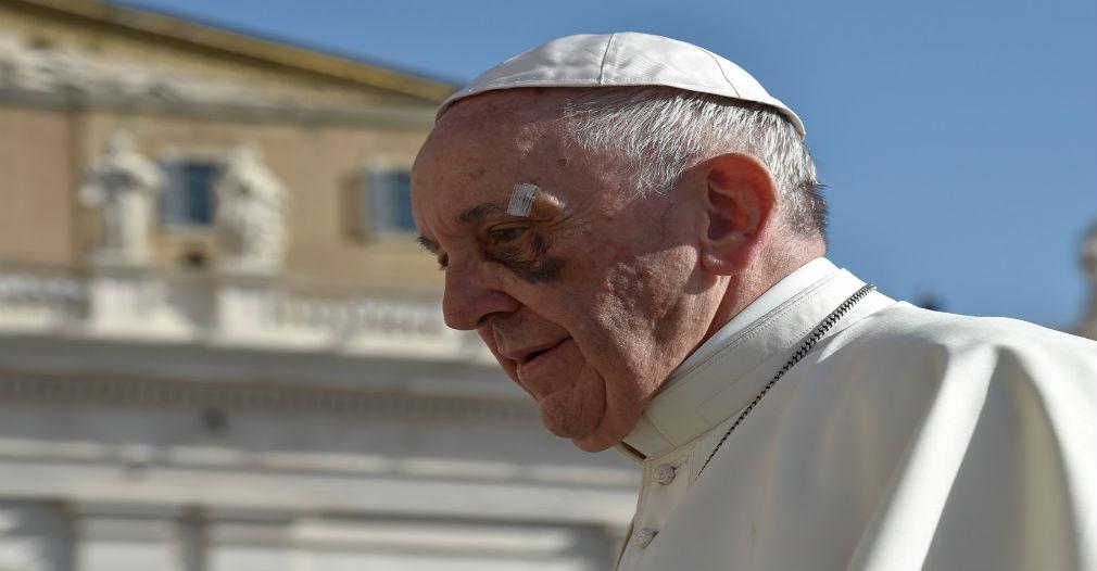 El Papa no se recupera de su ojo tras accidente en Cartagena