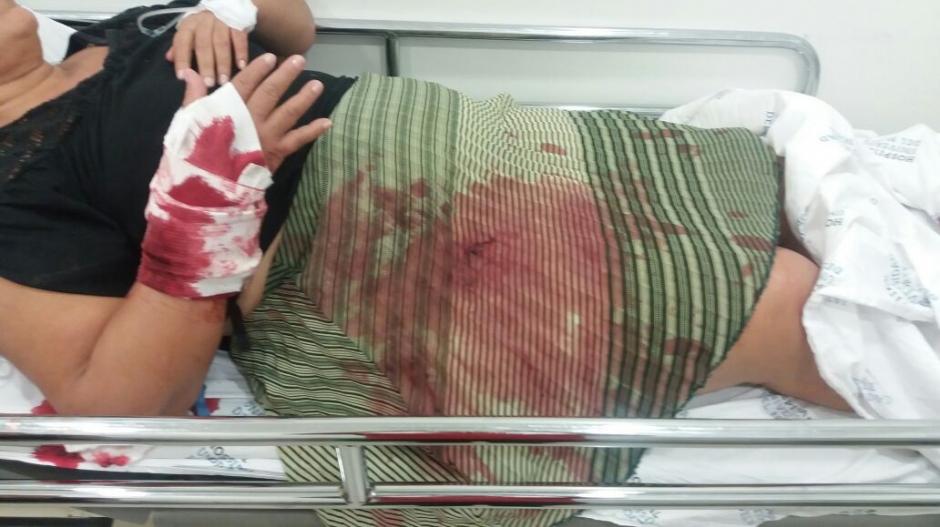 La hermana del excontralor Jorge Iglesias con las heridas recibidas.