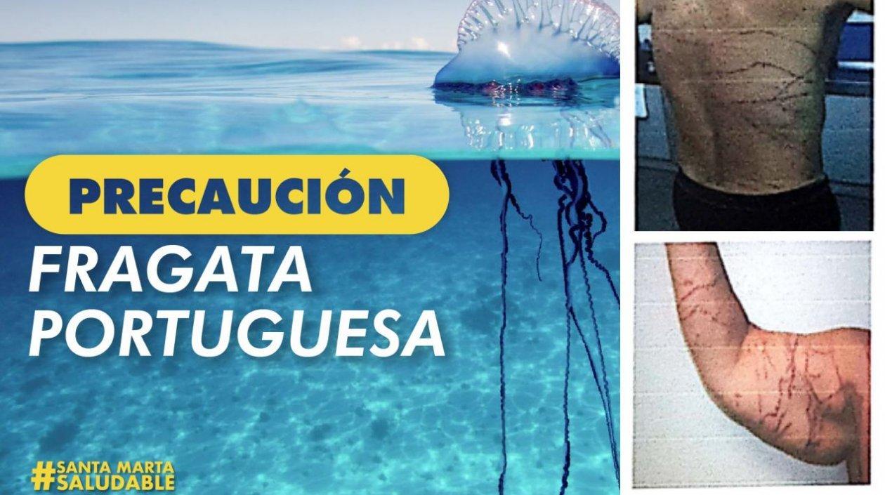 Autoridades recomiendan precaución por la medusa fragata en las playas de Santa Marta.