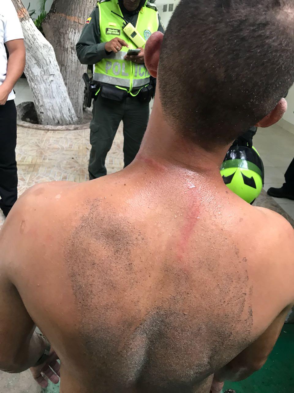 El turista golpeado.