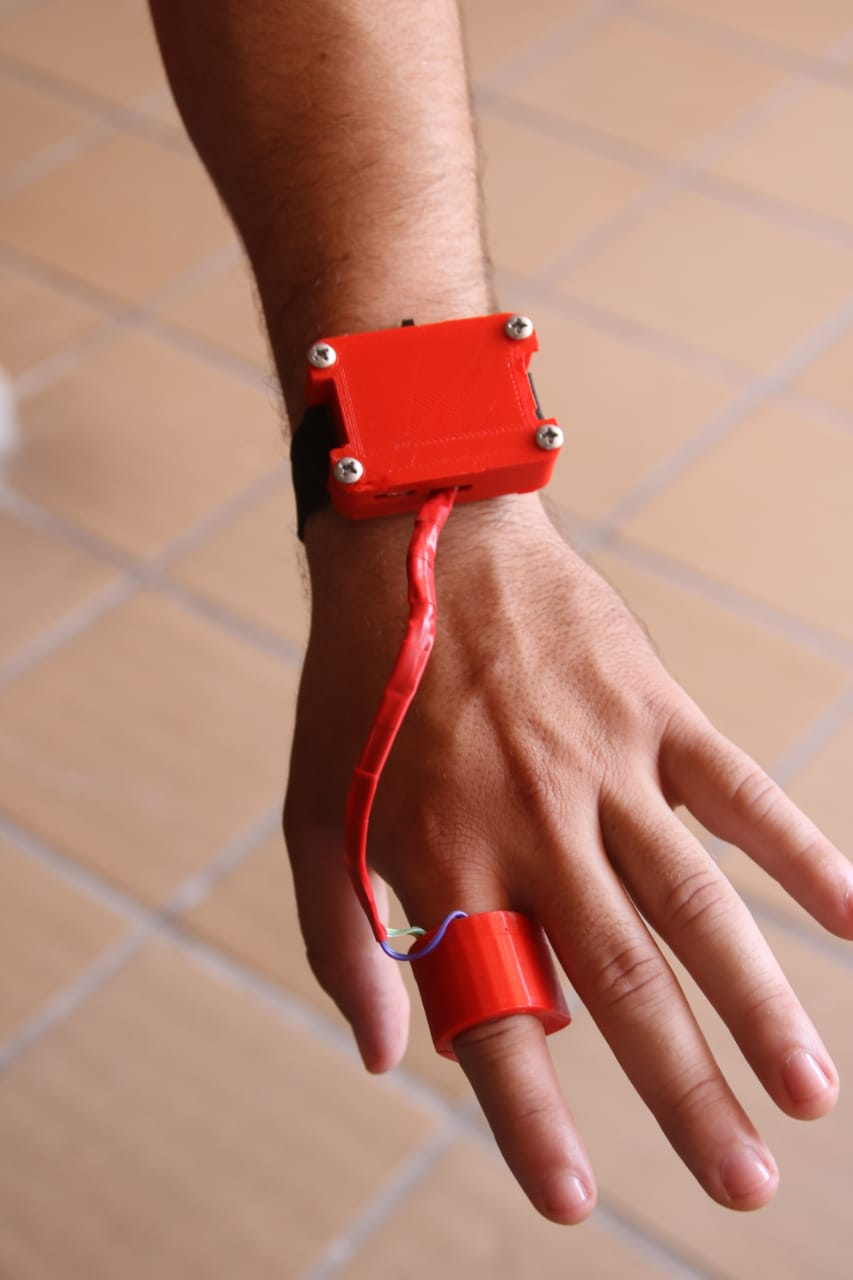 El primer prototipo del 'Sistema bio‐telemétrico portátil para el monitoreo de variables fisiológicas en pacientes con enfermedades crónicas' fue construido con impresiones en 3D.