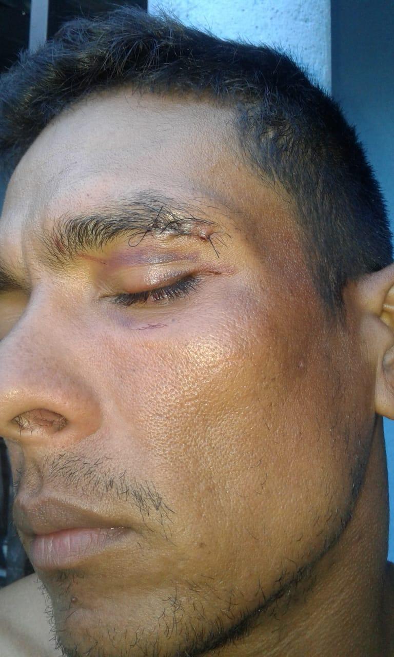 Herida producto de la agresión que recibió Wilfran.