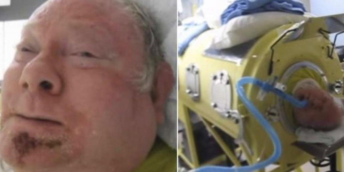 Hombre permanece en extraña máquina desde 1952, su historia es conmovedora