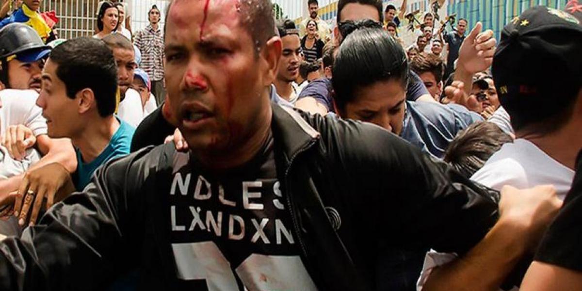 Imagen del teniente Danny José Subero luego de ser golpeado este sábado en Cabudare, Venezuela. Subero murió después.