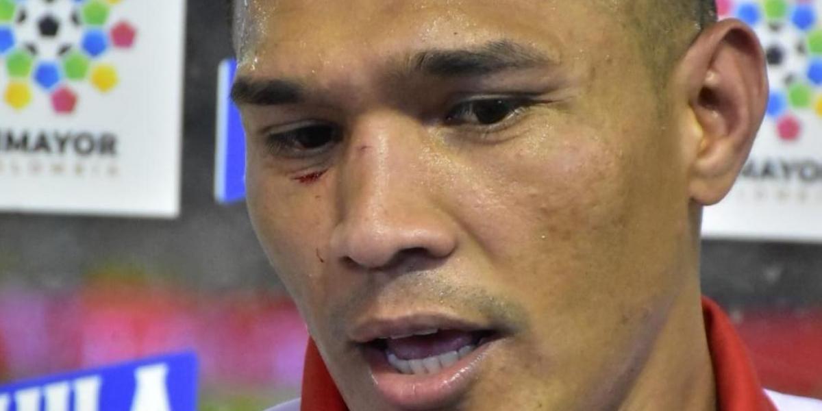 Así quedó el rostro de Gutiérrez al final del partido.