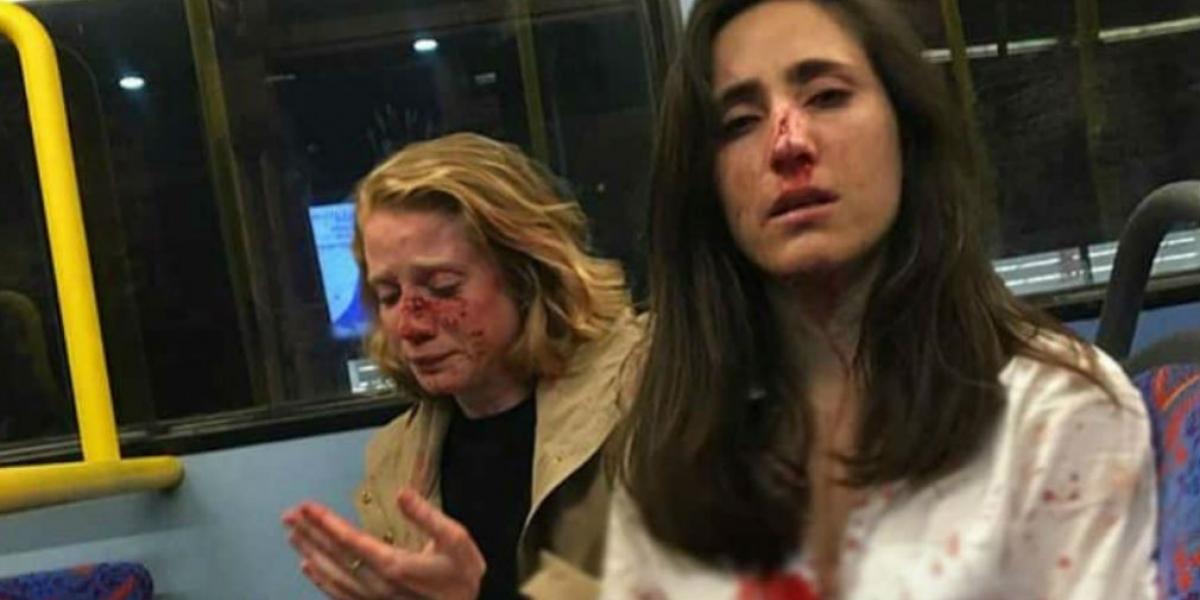 Paliza recibida por las mujeres en ataque homofóbico.