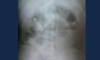En la imagen de este rayos X se observan los celulares en el estómago del recluso.