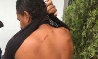 Uno de los heridos durante el enfrentamiento con la Policía.