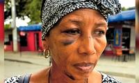 Las secuelas que dejó la brutal golpiza en Matitas