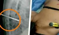 Como se observa en la radiografía, la vida de esta mujer estuvo en grave riesgo por la herida que la causó su marido.