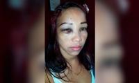 Cindy Aguilera, mujer agredida