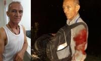 Luis Parra, del Hoy Diario del Magdalena, fue atracado por tres personas.