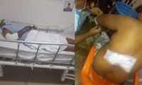 Las dos víctimas sufrieron heridas y quemaduras. Conductor huyó del lugar.