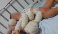 El bebé de 18 meses sigue en recuperación tras la quemadura sufrida.