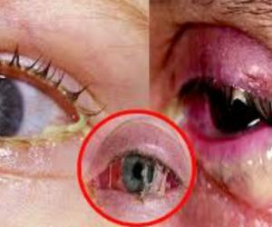 La conjuntivitis genera irritación de los ojos.