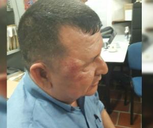 El operario José Osorio fue golpeado.