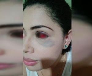 Ana Jiménez resultó visiblemente afectada por la golpiza.