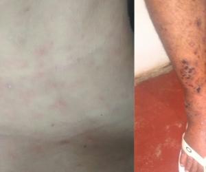 En Bastidas las aguas negras están causan enfermedades de la piel.