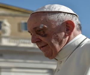 Ojo del Papa lesionado.