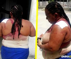 Mujer lesionada con botella