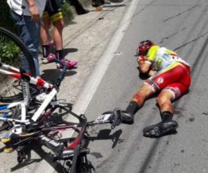 Uno de los ciclistas afectados.