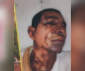 Pedro José Vanegas Jiménez fue atendido en el Hospital Fernando Troconis.