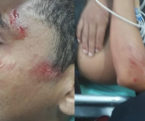 Estudiante golpeado