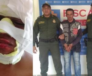 Uno de los policías quemados y el capturado.