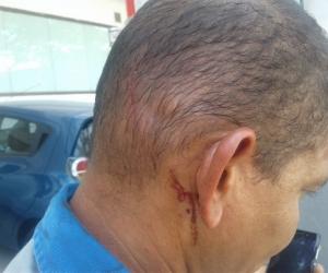 Trabajador de la empresa de energía eléctrica fue agredido mientras laboraba