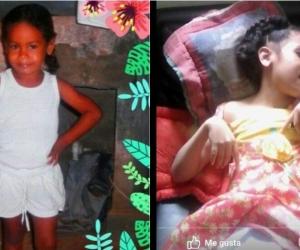 Dos fotografías: la primera de Yurainis antes de sufrir el accidente y la segunda su actual estado.
