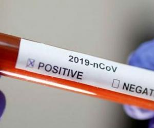 Las pruebas rápidas ayudarán a identificar el virus rápidamente.