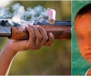 Niño impactado por un escopetazo en Córdoba.