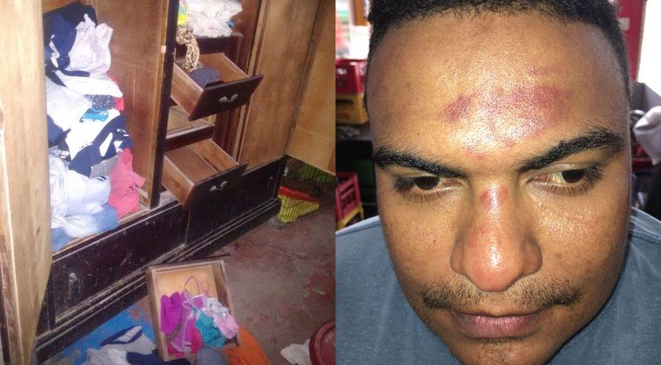 Ronny Montenegro Romero denunció haber sido golpeado por la Policía.