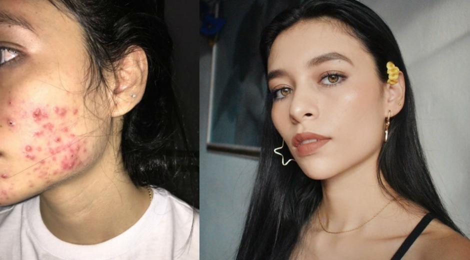 Camila Delgado, la tuitera que compartió su historia de acné.